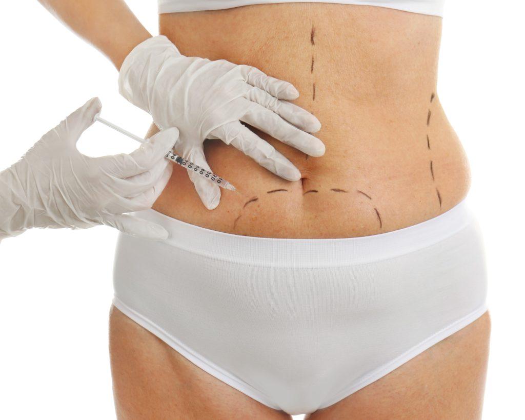 Mesotherapie in den Armen vor und nach dem Abnehmen